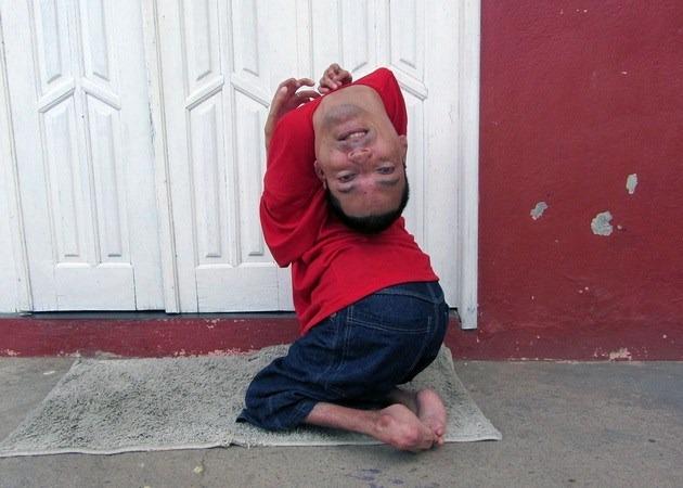 nguoi-dan-ong-co-dau-lon-nguoc